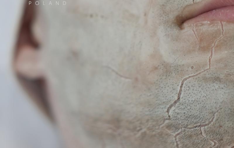 Jak przygotować skórę do mezoterapii iniekcyjnej?